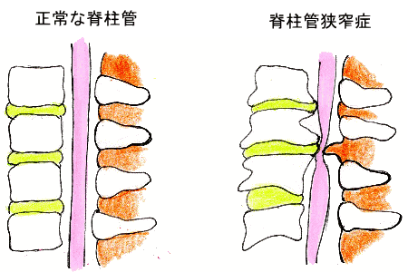 いの徳整骨院・治療院 脊柱