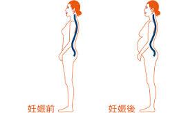 北浦和 産後の腰痛